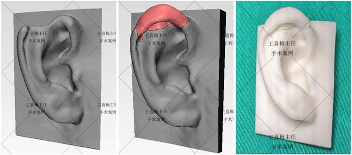 郑州大学第一附属医院完成首例3D打印辅助的半耳廓再造插图1