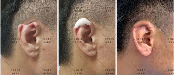 郑州大学第一附属医院完成首例3D打印辅助的半耳廓再造插图2