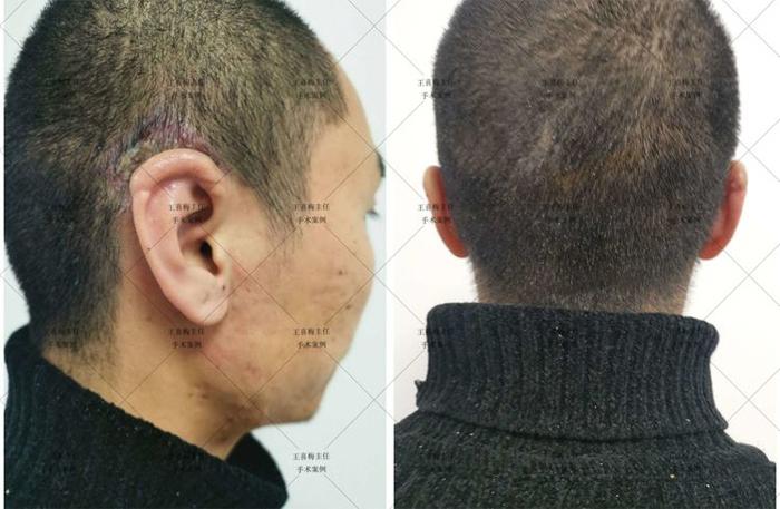 郑州大学第一附属医院完成首例3D打印辅助的半耳廓再造插图3